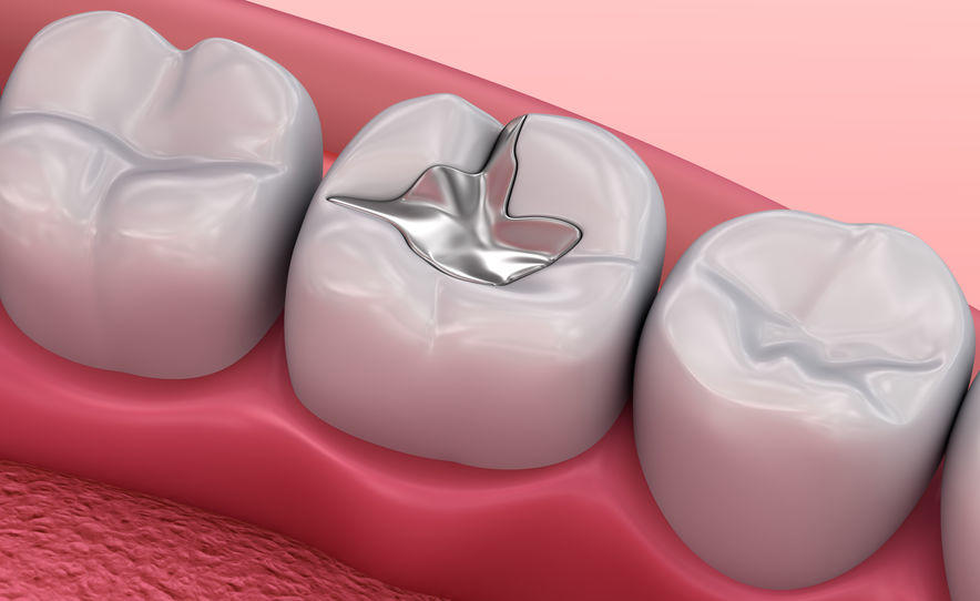 The benefits of Mercury Free Fillings